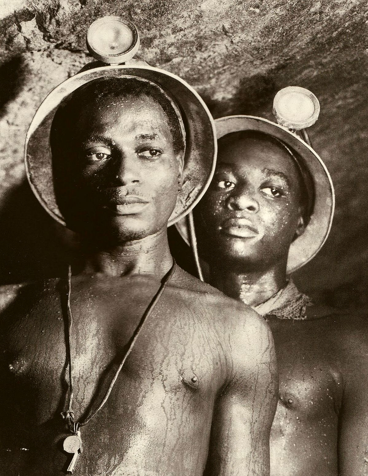"Miners in Southern Africa ""have some of the highest rates of tuberculosis (TB) / HIV in the world""."